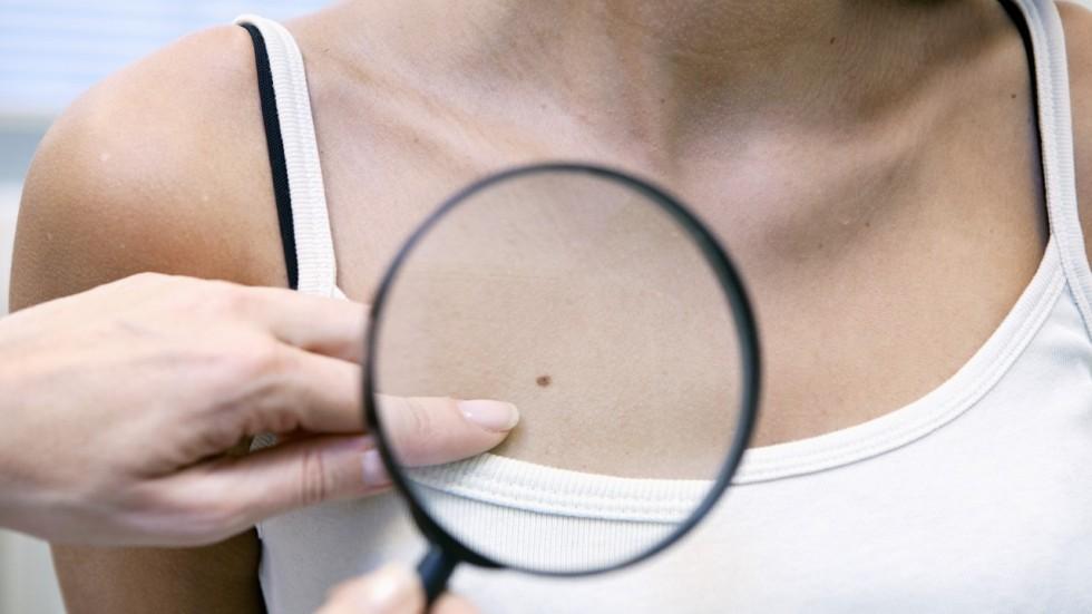 Родинки на груди у женщин и девушек: фото, причины и как убрать