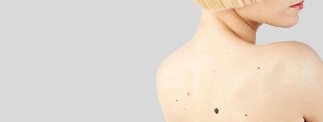 Родимое пятно у мужчин, женщин, ребенка на теле: откуда берутся, как выглядят?