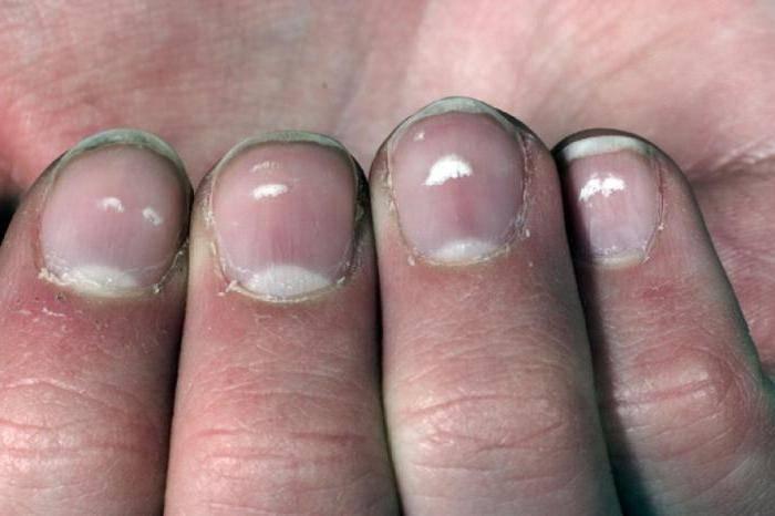 Когда белые пятна на ногтях перестают быть просто косметическим дефектом + семь главных условий для сохранения красоты ногтей
