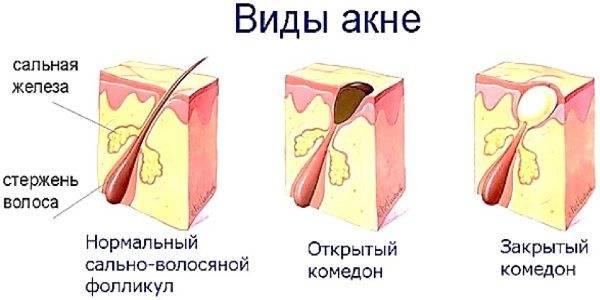 Прыщ на носу (слева, справа, на кончике): народные приметы