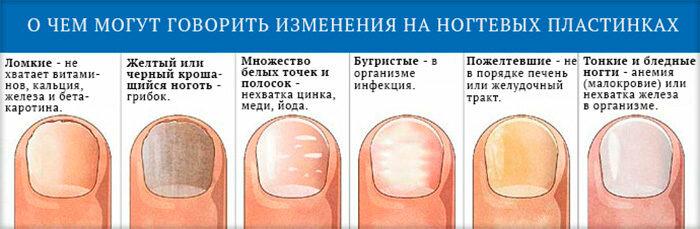 Белые пятна на ногтях пальцев рук: причины