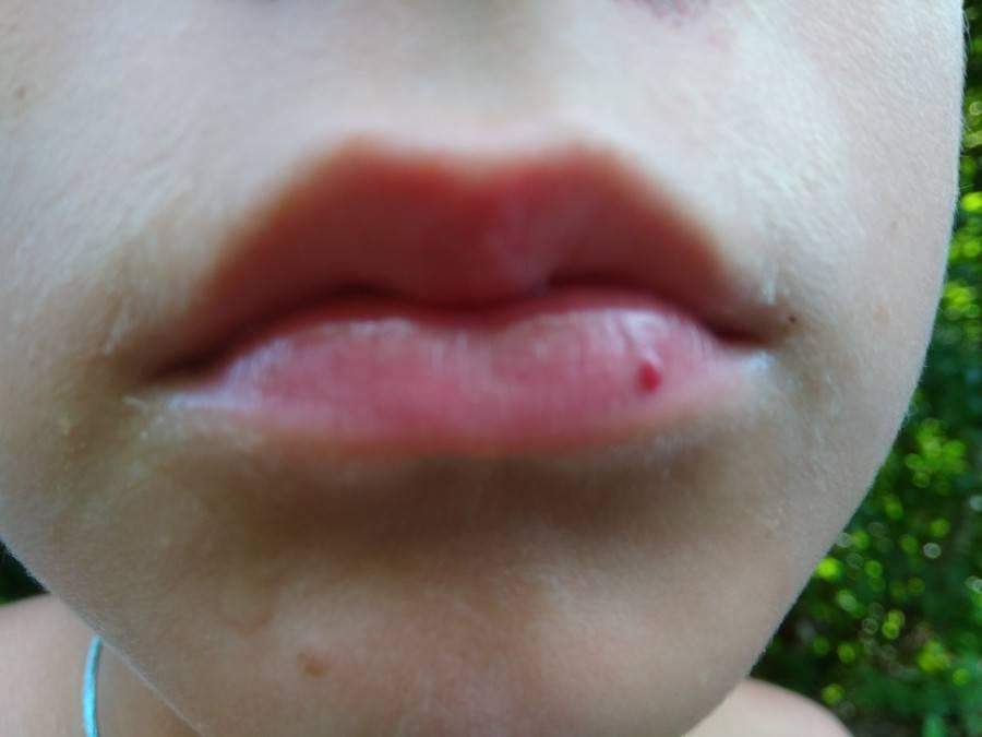 К чему прыщик на губе примета. народные приметы про прыщ на губе. а если прыщ над губой находится ближе к носу