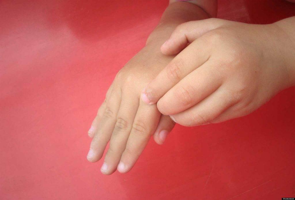 Толкование приметы, если чешется большой палец левой руки