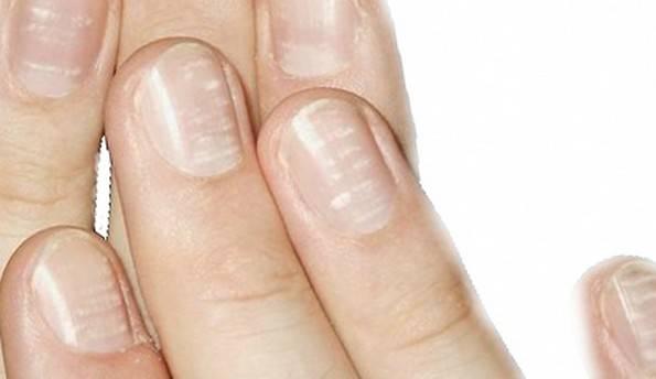 Причины возникновения белых пятен на ногтях, как лечить