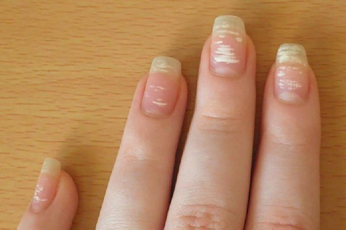 Белые пятна на ногтях. топ 25 причины, что означают. приметы, к чему белые пятнышки на ногтях