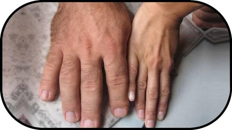 Пальцы рук кривые
