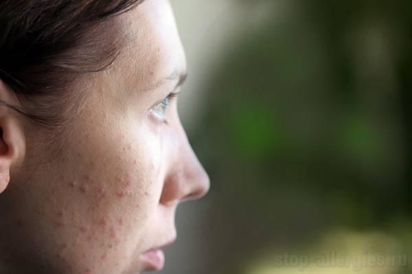 Заговор от аллергии ➤ чтобы прошла аллергия без лечения