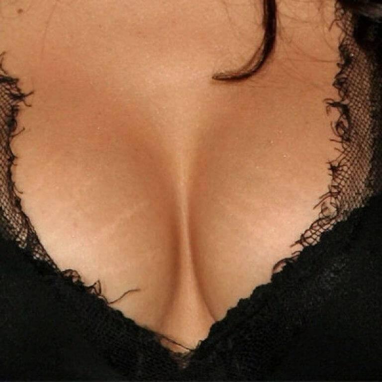Родинка на груди: значение у женщины и мужчины, на правой и левой стороне грудной клетки