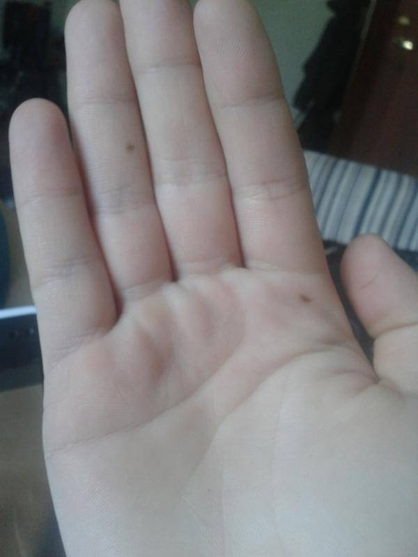 Значение родинки на мизинце правой и левой руки