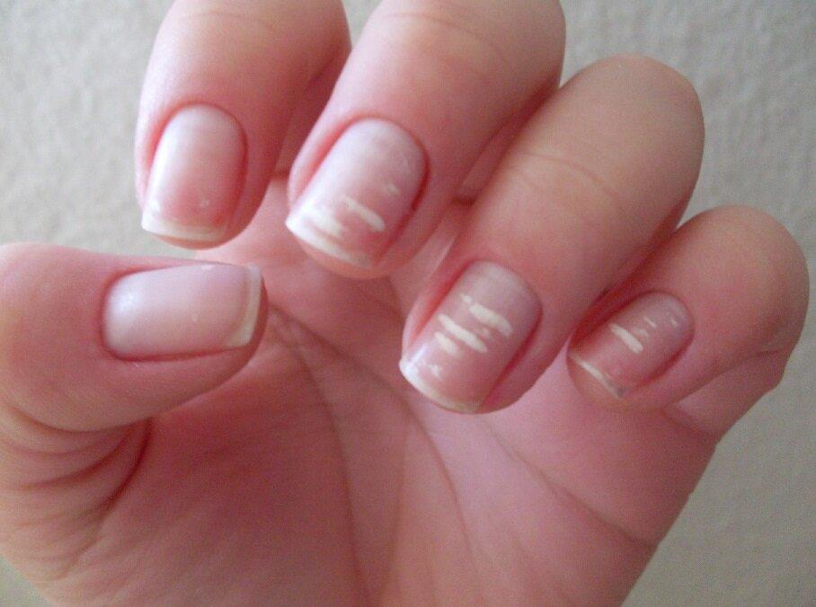 Почему появились белые пятна на ногтях? причины появления и способы их лечения
