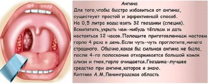 Заговор и молитвы для лечения ангины