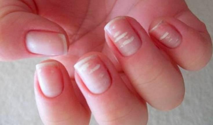 Белые пятна на ногтях пальцев рук - причины появления