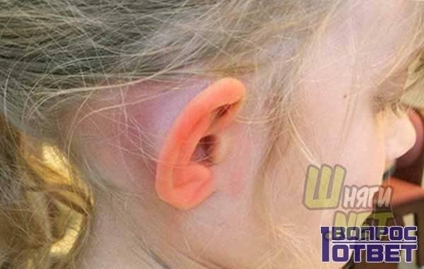 Проверенные приметы: к чему горят уши и щеки одновременно