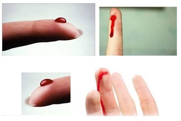 Приворот на крови: из пальца, месячных, присушка, как снять, откуп.