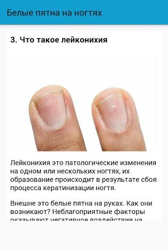 Белые пятна на ногтях пальцев рук — что они означают и почему появляются?