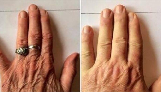Определение характера по пальцам