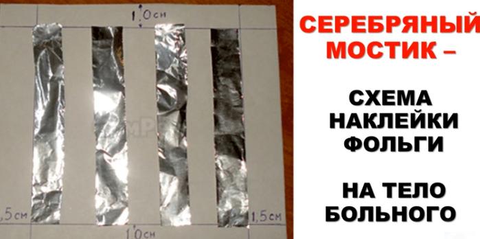 Лечение серебряными мостиками. инструкция по применению