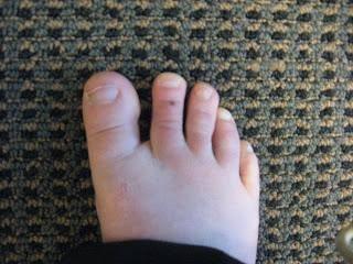 Родинка на стопе, бедре и других местах ноги: магические приметы. что означает родинка на стопе