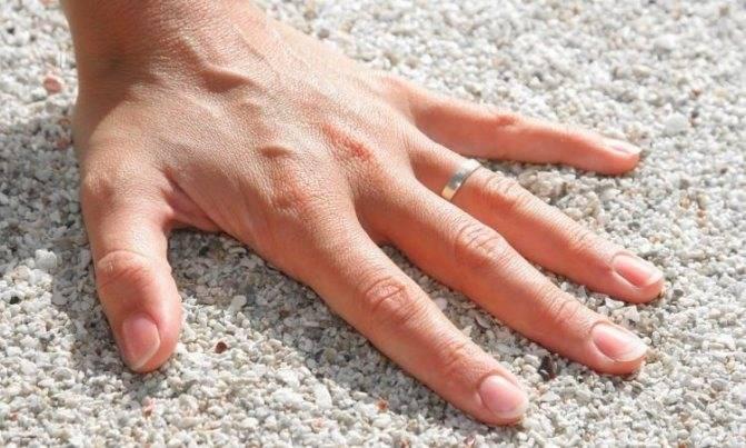 Народная примета, если чешется большой палец на левой руке