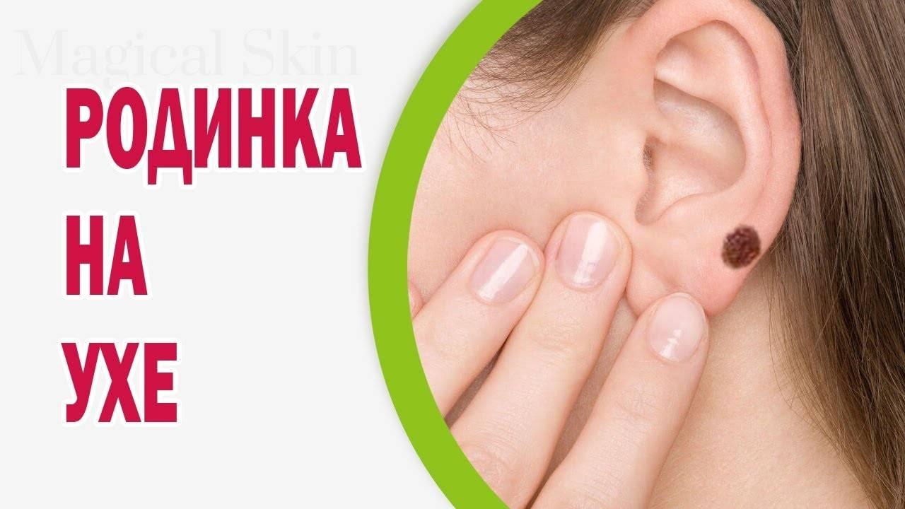 Родинка на ухе — примета с многогранным значением