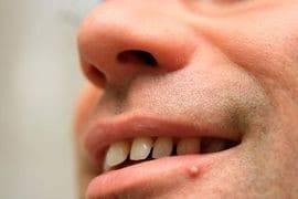 Примета прыщ на губе указывает на сплетника