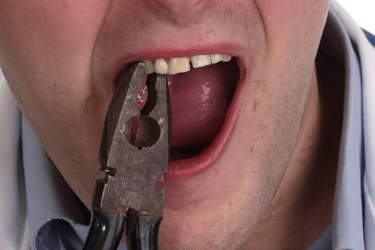 Сонник выпали зубы. к чему снится выпали зубы видеть во сне - сонник дома солнца