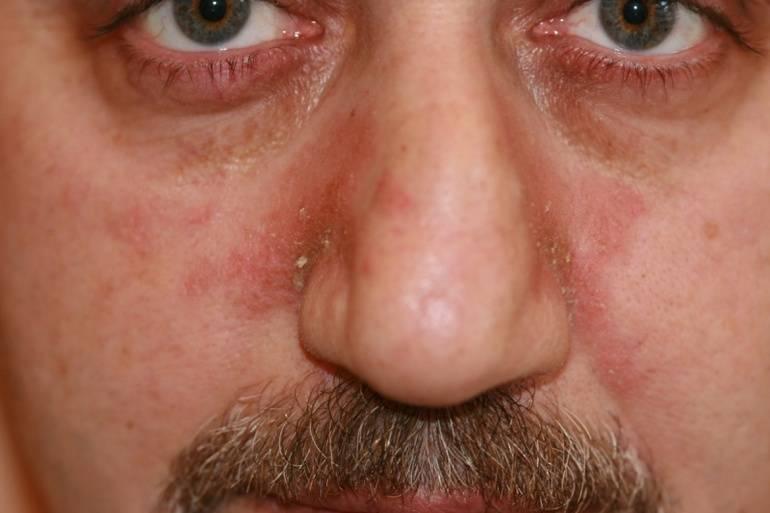 Прыщ на носу и лице: приметы и значения