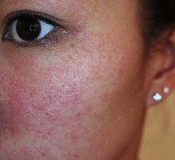Заговоры от аллергии у малыша