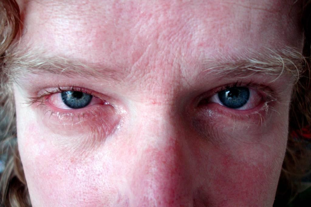 Заговор от аллергии • аллергия и аллергические реакции