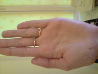Что означают родинки на ладонях и пальцах - дом солнца