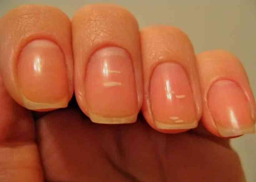 Белые пятна на ногтях: почему появляются и нужно ли лечить