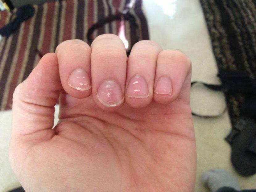 Почему на ногтях рук и ног появляются белые пятна. лейконихия. что означает, причины и лечение.