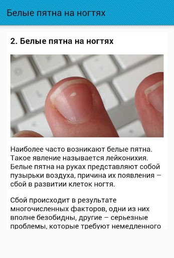 Белые пятна на ногтях - отчего появляются и как лечатся