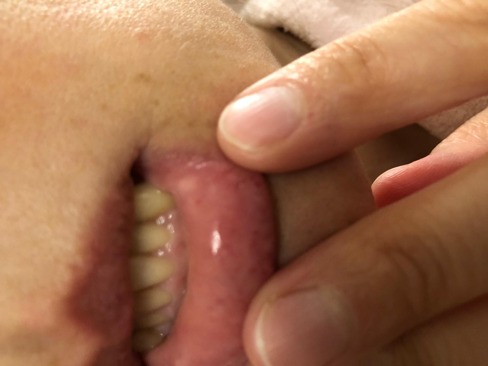 К чему выскакивает прыщ на верхней или нижней губе: приметы и суеверия