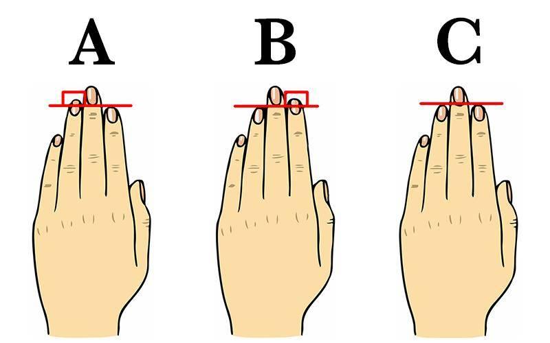 Кривые пальцы на руках: причины и лечение деформации, почему искривляются