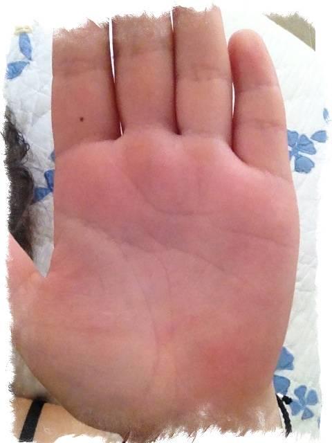 Эти странные приметы — значение родинок на пальцах