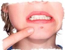 Прыщ в уголке рта приметы. прыщ на губе: положительные и отрицательные толкования