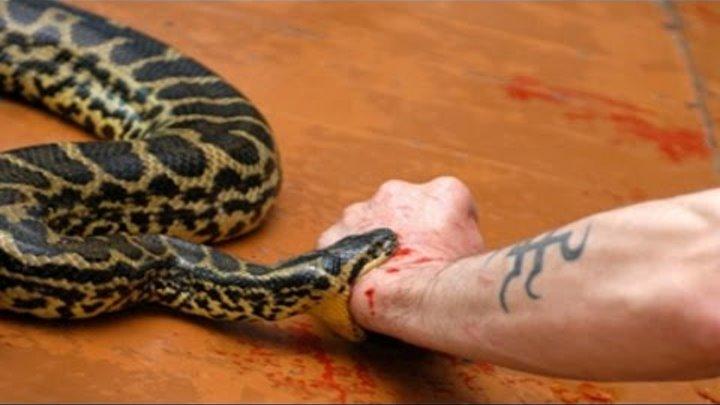 Укусила змея но я ее не видела