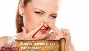 Приметы: вскочил прыщ на носу, подбородке, лбу, губе или щеке
