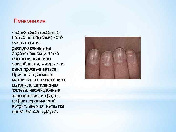 Белые пятна на ногтях пальцев рук — причины появления, что они означают?