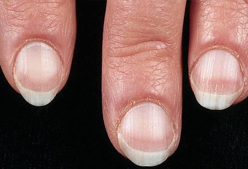 Как избавиться от белых пятен на ногтях - wikihow