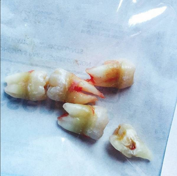 Зуб выпадают