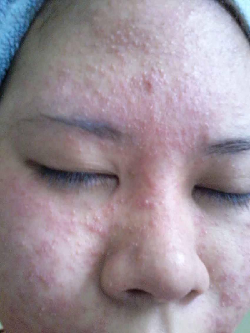 Заговор от аллергии у новорожденного. сильная молитва от аллергии у ребенка