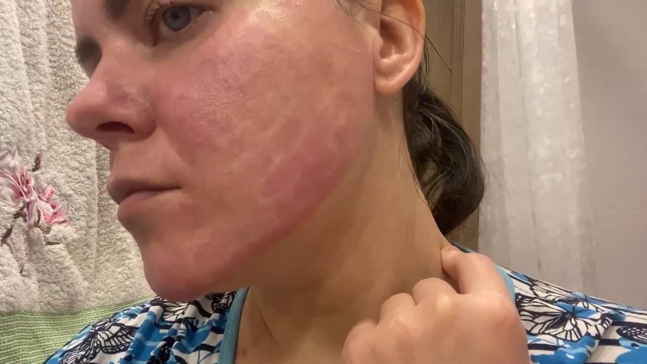 Заговор от аллергии для взрослых и детей: лучшие обряды