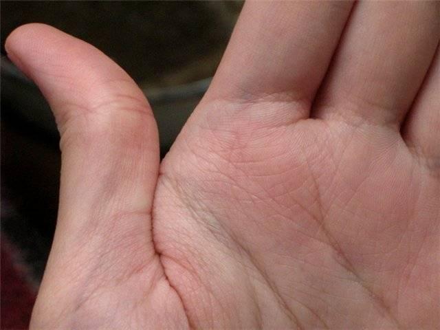 Пентаграмма на руке хиромантия. значение символа звезды на ладони