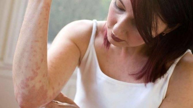 Сильные заговоры от аллергии. заговор натальи степановой от аллергии