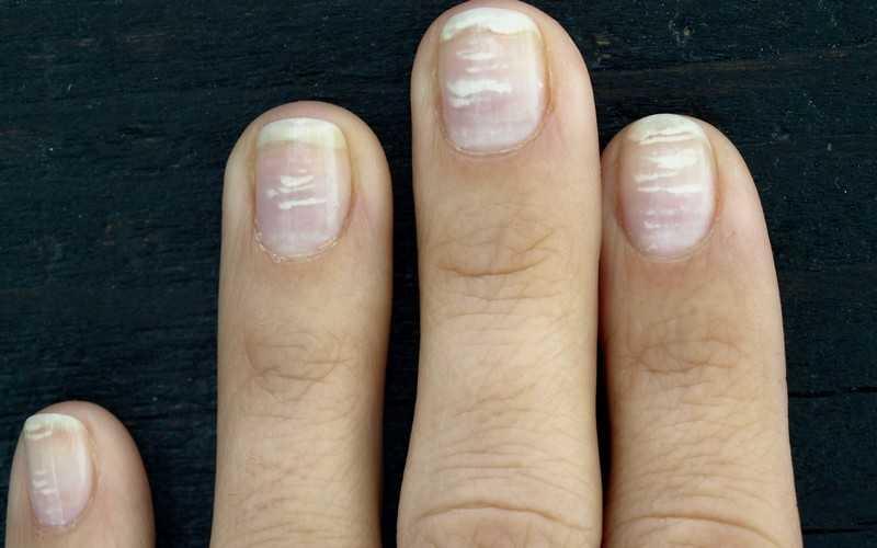 Приметы: белые пятна на ногтях, что означают точки