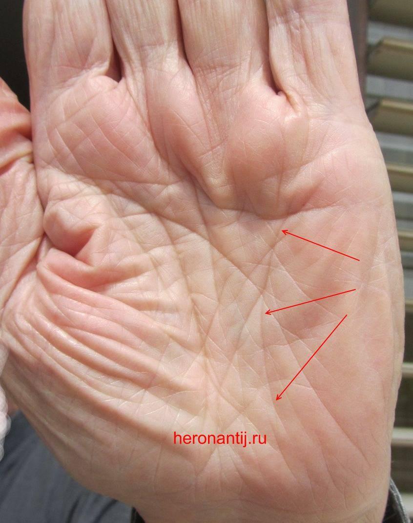 Линия смерти на руке или знаки, которых стоит опасаться | узнай свою судьбу