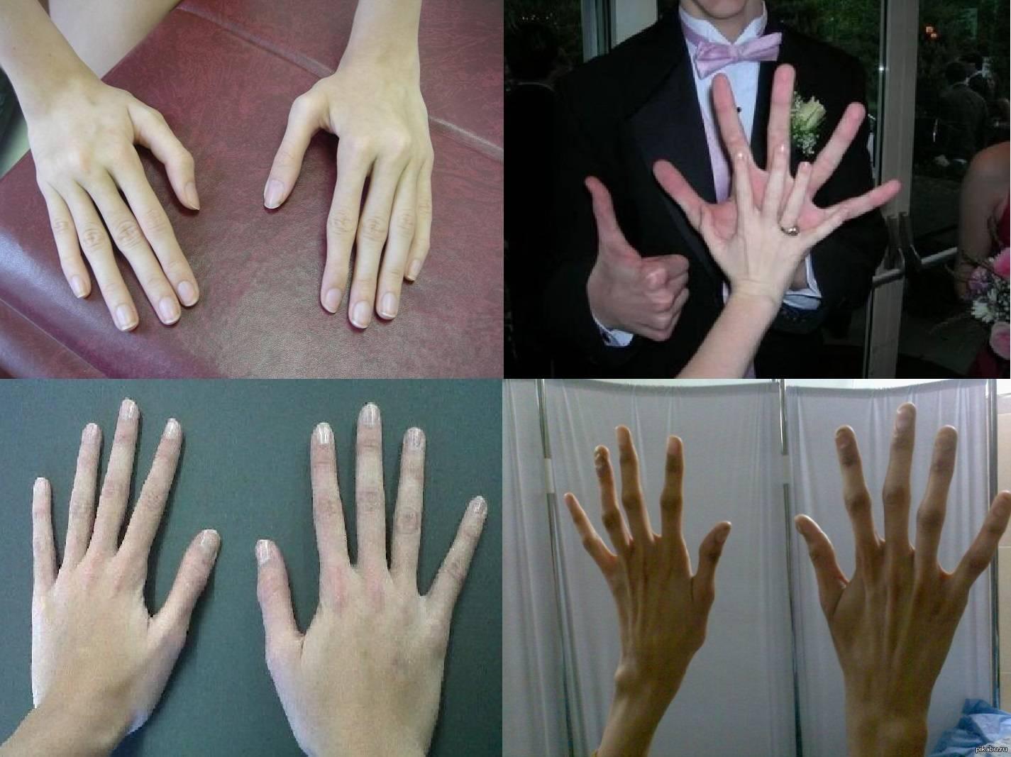 Кривые пальцы: возможные причины деформации, варианты коррекции, фото