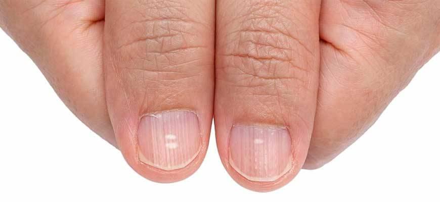 Белые пятна на ногтях: причины возникновения и лечение (114 фото)